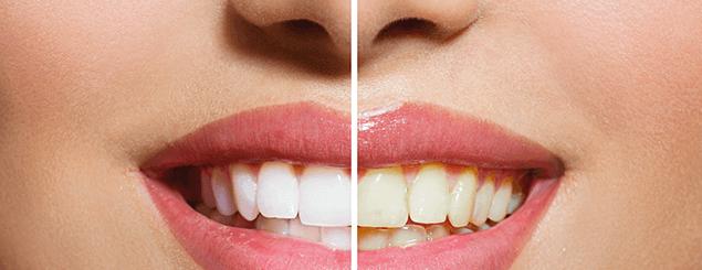 Blanquea los dientes con recetas naturales
