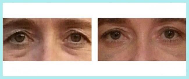 La operacion de parpados: antes y después