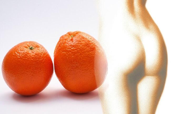 Consejos sencillos y eficaces contra la celulitis