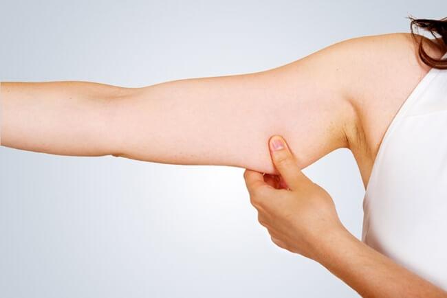 Evita el descolgamiento de la piel de los brazos