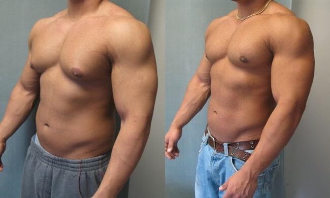 Ginecomastia y lo último en cirugía estética para hombres