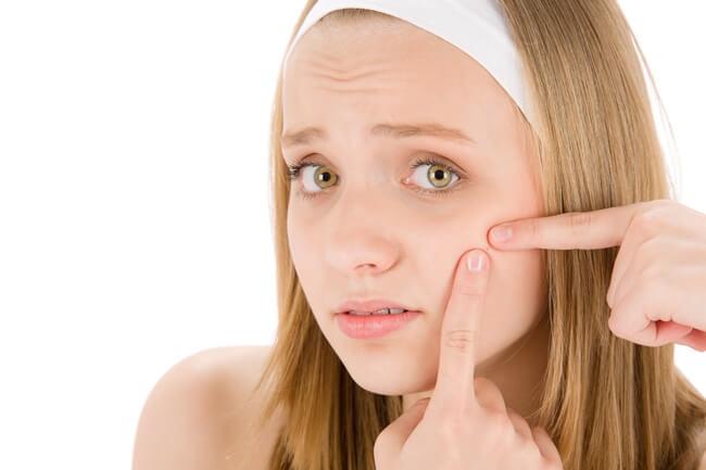 Trucos para eliminar el acné