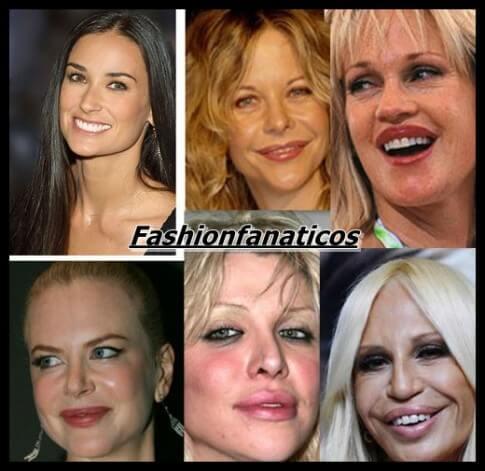 Botox y famosas