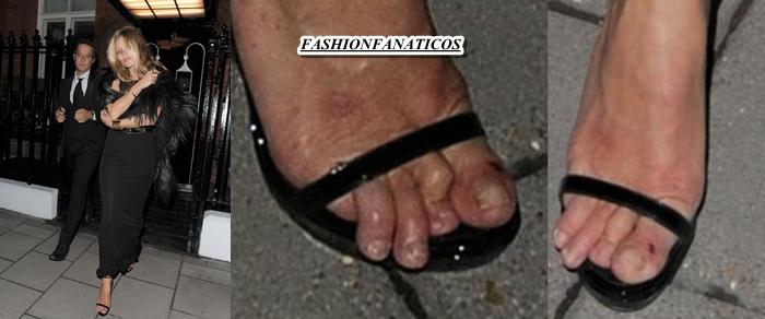 Kate Moss y sus pies