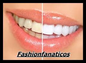 Blancorexia, obsesión por los dientes blancos