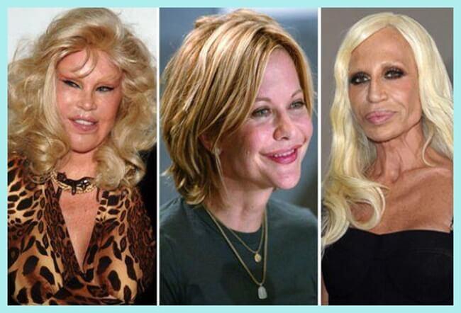 La adicción de las famosas por el botox y sus consecuencias