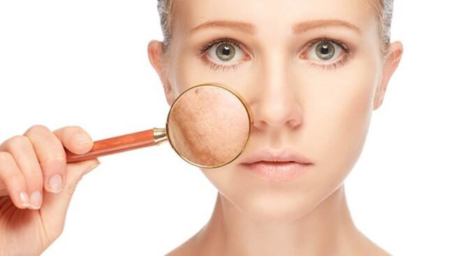 Manchas en la piel, un problema estético con fácil solución